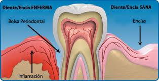 Imagen periodoncia encia enferma-sana