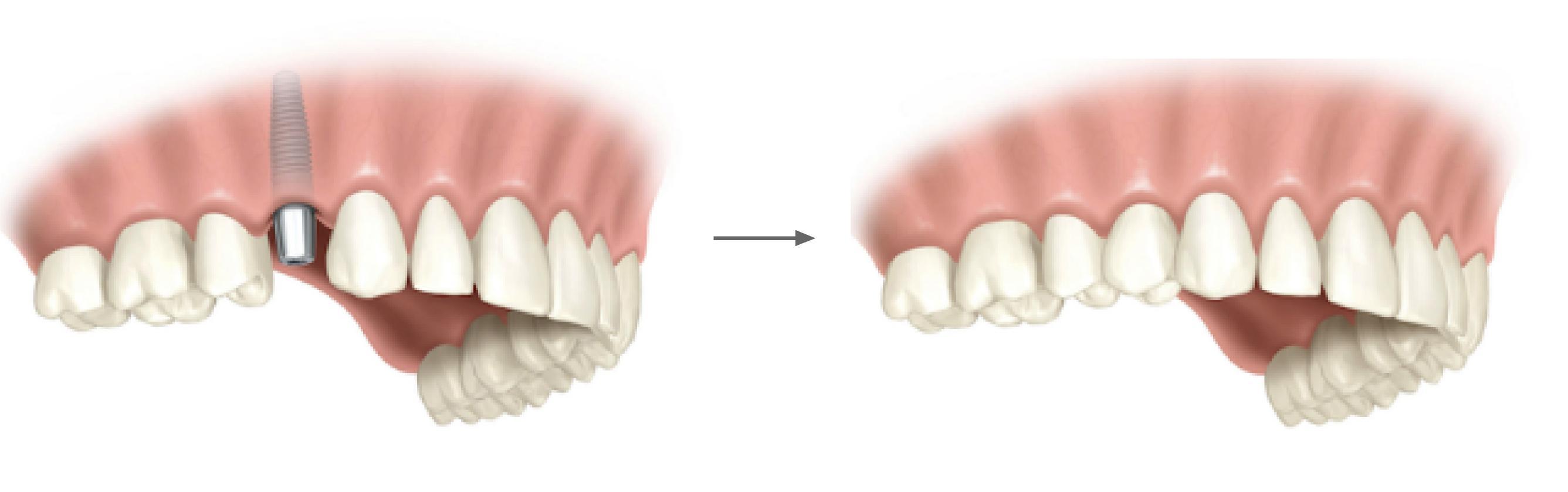 Clínica GO - Implante Unitario