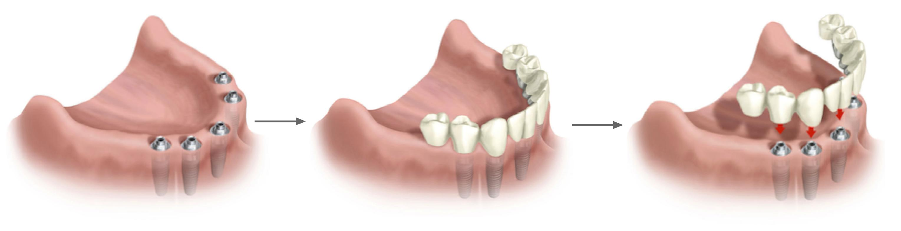 Clínica GO - Rehabilitación Completa sobre implantes